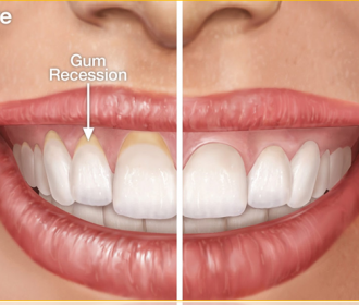 Regenerate Gums Naturally