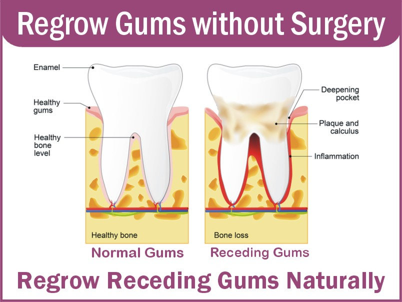 Effective Methods For Gum Regrowth Treatment
