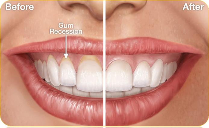 Receding Gum Treatment Before After