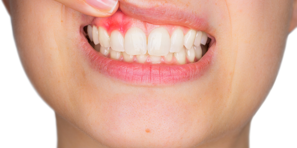 Can You Reverse Receding Gums?
