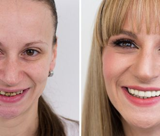 Gum Regrowth Treatment Cost
