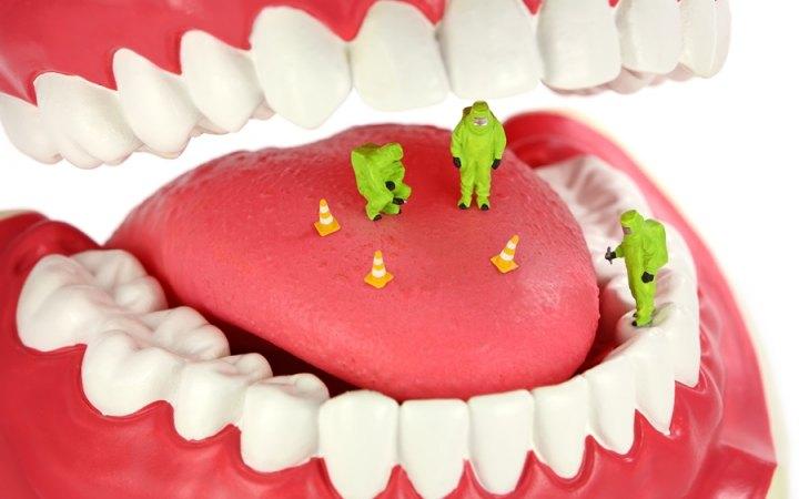 Gum Disease Receding Gums