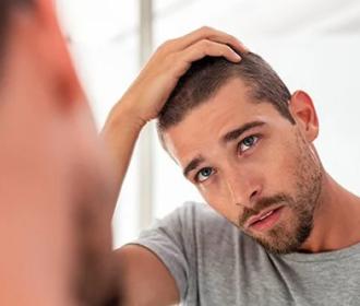 Remedies for Hair Loss in Men